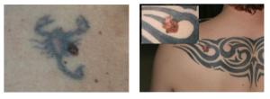 Melanome im Tattoo