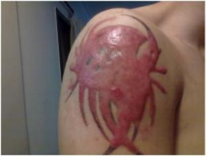 Das Keloid das nach einer Laserbehandlung entstand, bedeckt bereits das gesamte Tattoo. (4)